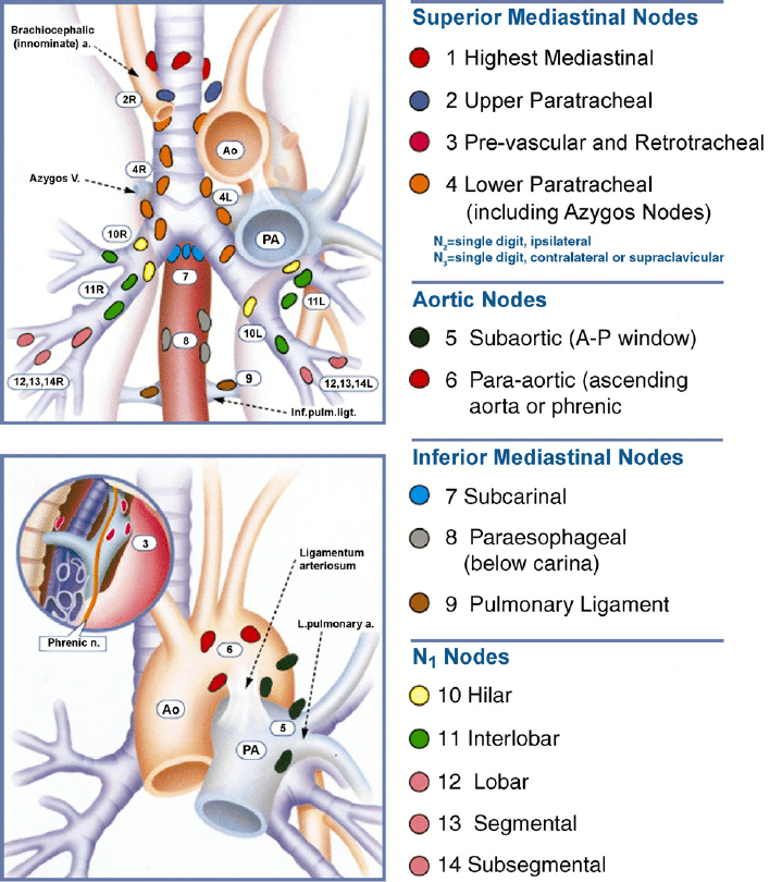 Regional lymph node stations for lung cancer staging [2 ...