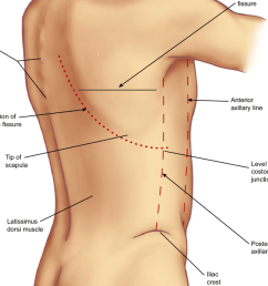 surface anatomy of the back note that the origin of the right oblique fissure is [ 850 x 1287 Pixel ]