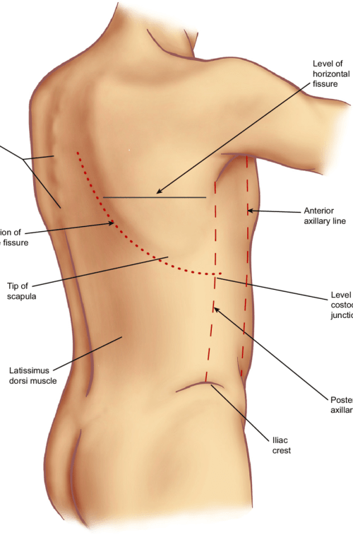 small resolution of surface anatomy of the back note that the origin of the right oblique fissure is