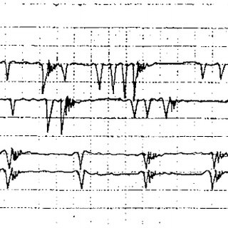 (PDF) Vesical pacing in patients with overactive bladder