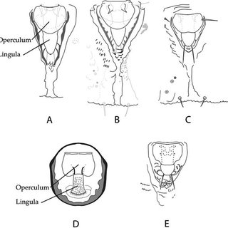 (PDF) Systematics of Bemisia and Bemisia Relatives: Can