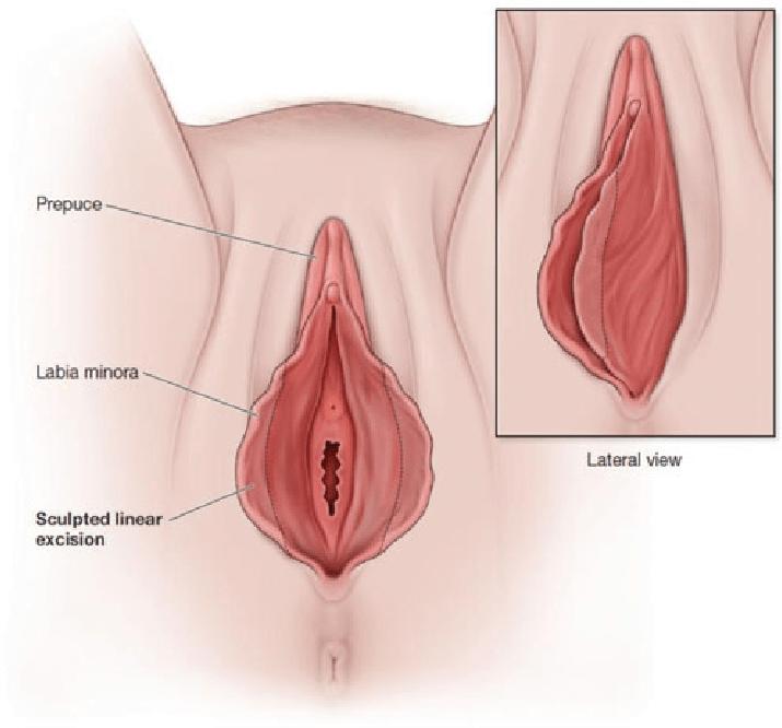 Labia minora labiaplasty linear resection technique ...