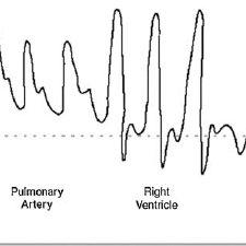 (PDF) Constrictive pericarditis, still a diagnostic