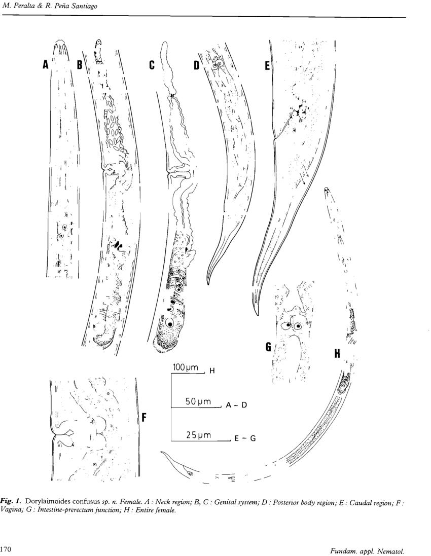 medium resolution of dorylaimoides confusus sp n female a neck l egion b c genital download scientific diagram