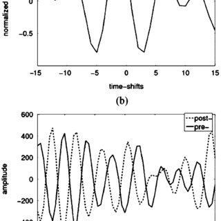 (PDF) Motion Estimation in Ultrasound Images Using Time