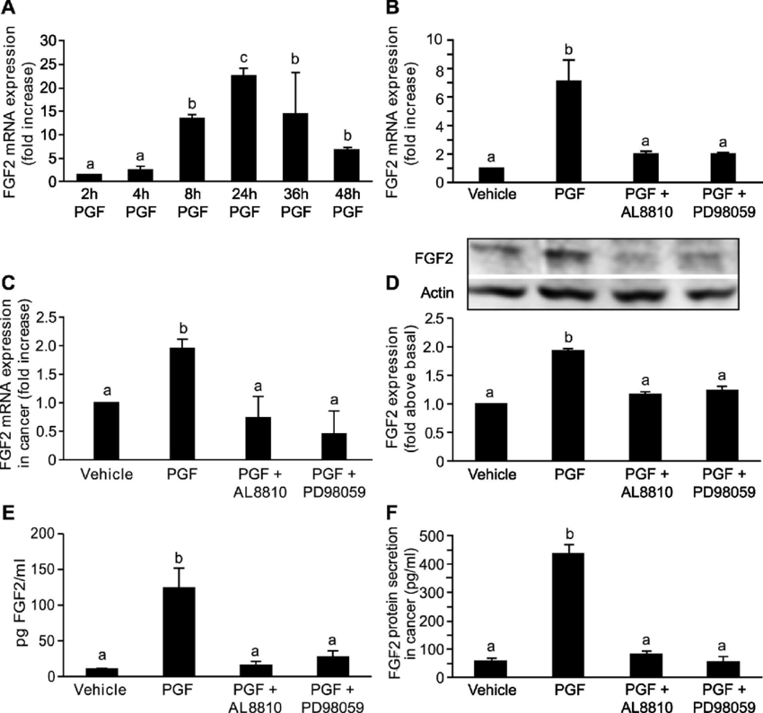 FGF2 expression in Ishikawa cells and endometrial cancer