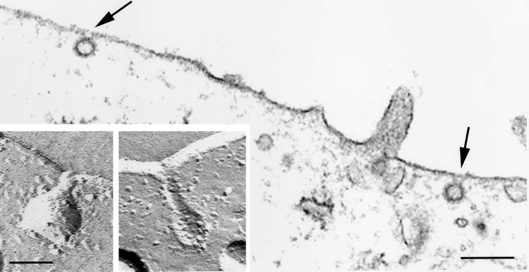 Electron microscopy showing the morphology of clathrin