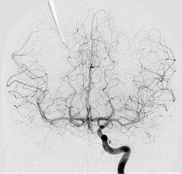 Left internal carotid arteriogram shows preferential