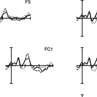 (PDF) Processing (un)predictable word stress: ERP evidence