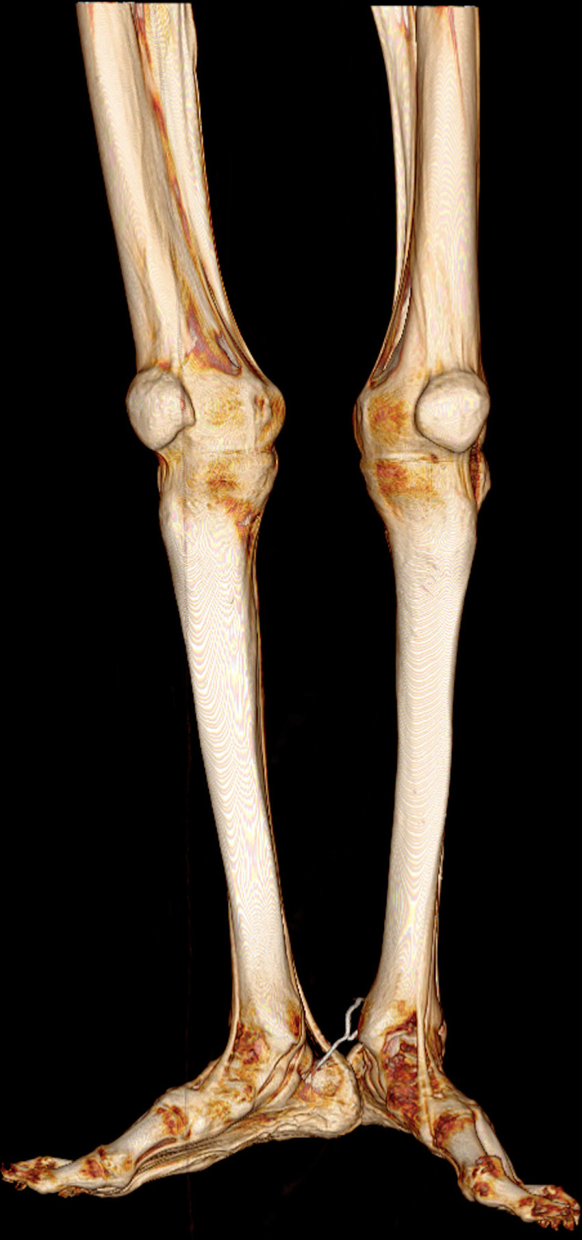 hight resolution of lower extremities