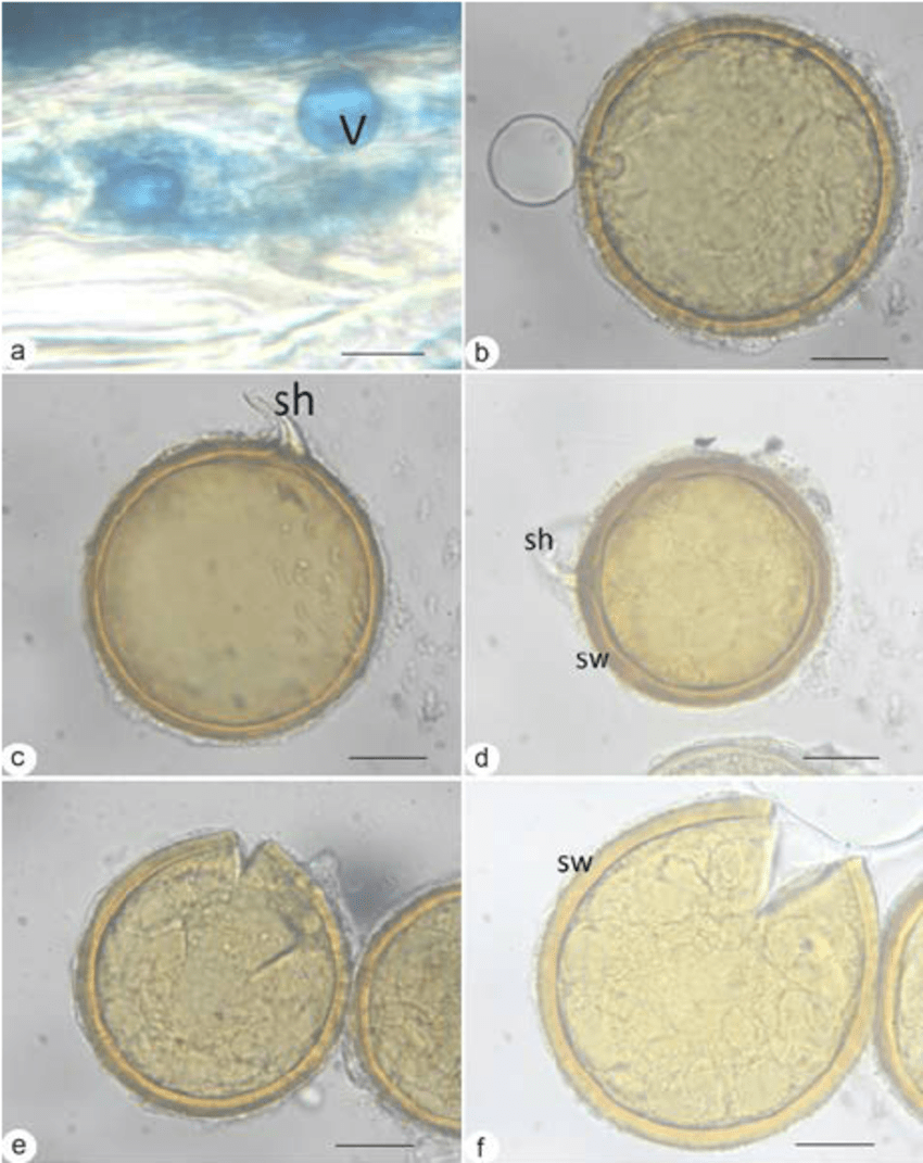medium resolution of infections and morphospecies amf isolated from ferns the structure of vesicles at the root p radicans with trypane blue staining b scutelospora spore