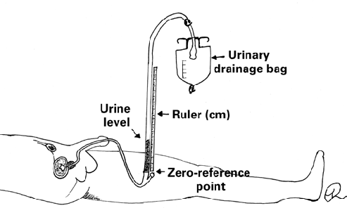 Intra-abdominal pressure measurement using the U-tube