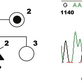 (PDF) Prenatal molecular diagnosis of a severe type of L1