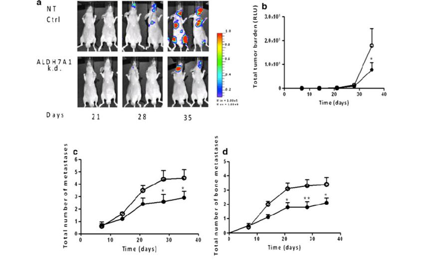 ALDH7A1 knockdown prostate cancer cells show decreased