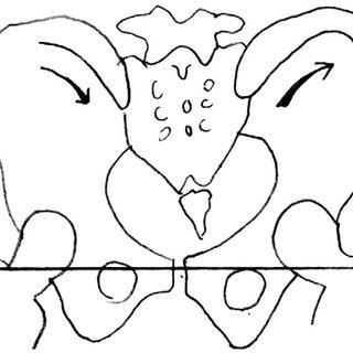Pelvic torsion about an axis through the symphysis pubis
