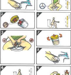 illustration of midstream urine collection technique  [ 840 x 1048 Pixel ]