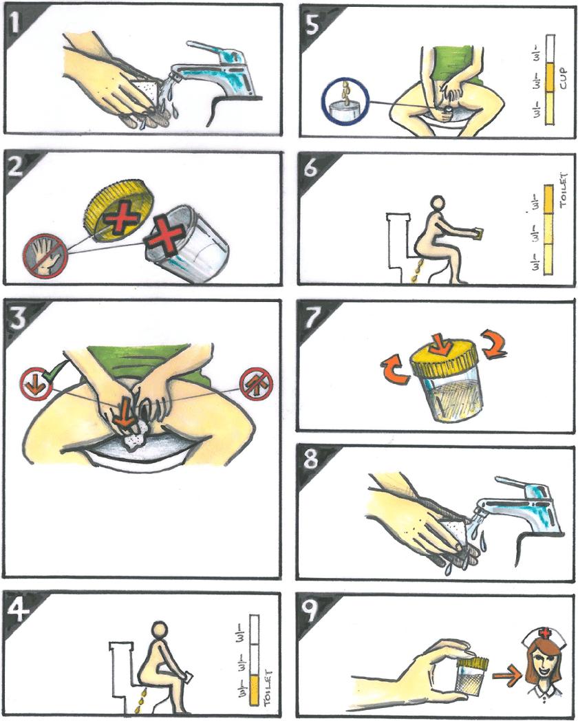 medium resolution of illustration of midstream urine collection technique