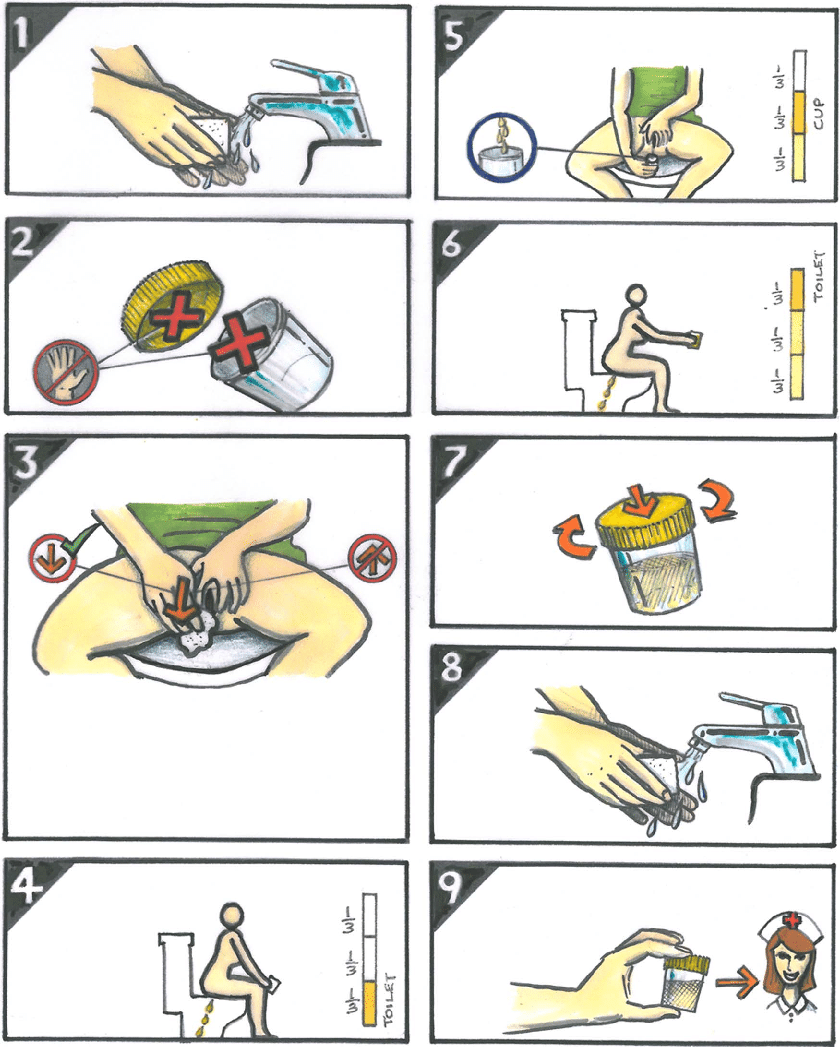 hight resolution of illustration of midstream urine collection technique