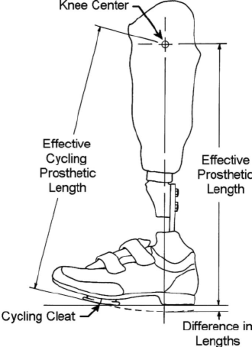 Diagram describing the difference in effective prosthetic