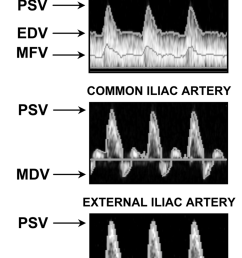 shown are representative doppler flow velocity waveforms from uterine ua common iliac [ 800 x 1117 Pixel ]