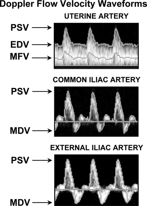 small resolution of shown are representative doppler flow velocity waveforms from uterine ua common iliac
