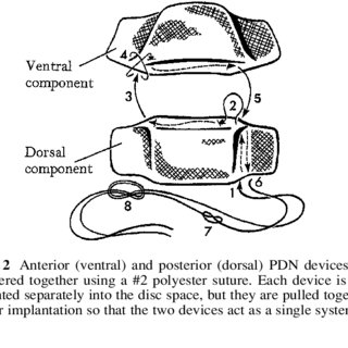 (PDF) Surgical and clinical results with the PDN