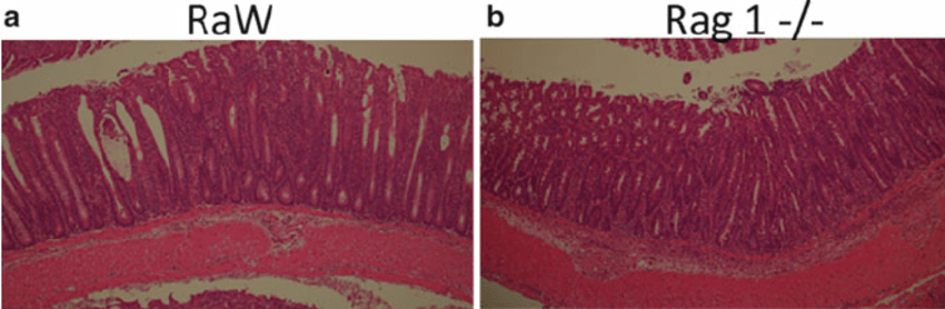 Histological appearance of colitis in transfer model: Typical colitis...   Download Scientific Diagram