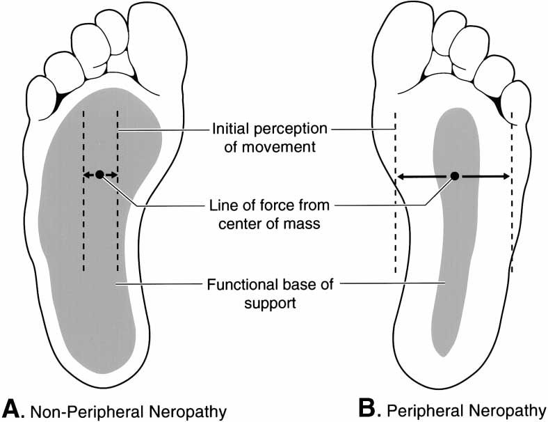 Sole of the foot in (A) nonperipheral neuropathy center of mass... | Download Scientific Diagram