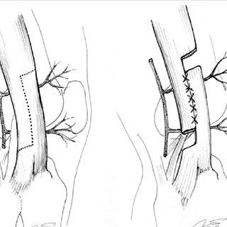 (PDF) Iliotibial band syndrome following hip arthroscopy