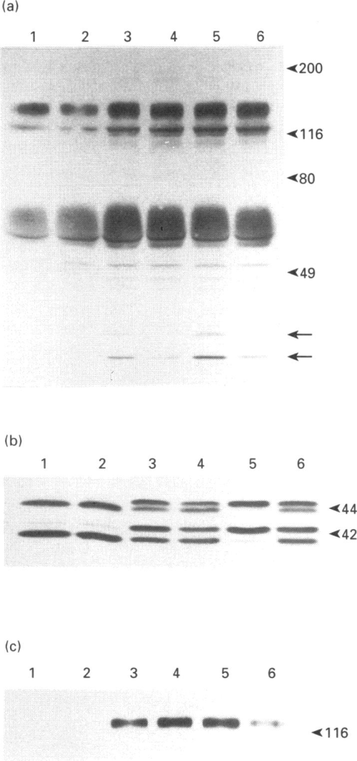 small resolution of effect of pertussis toxin pretreatment on et 1 and lpastimulated tyrosine phosphorylation of map kinase and pp125 0 in rat 1 fibroblasts cells were