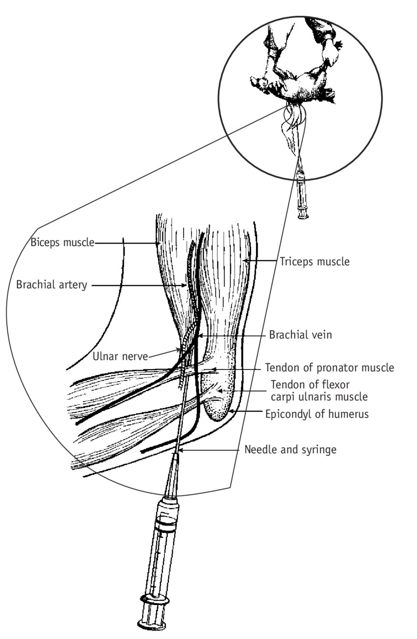 medium resolution of collecting blood from the brachial wing vein of a chicken