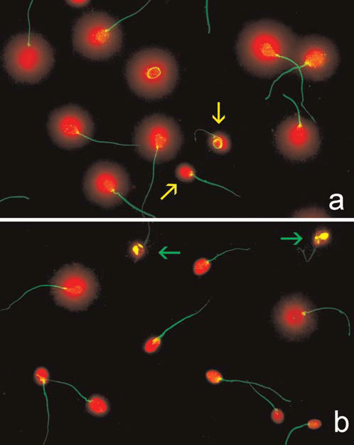 Sperm DNA fragmentation as visualized after application of ...