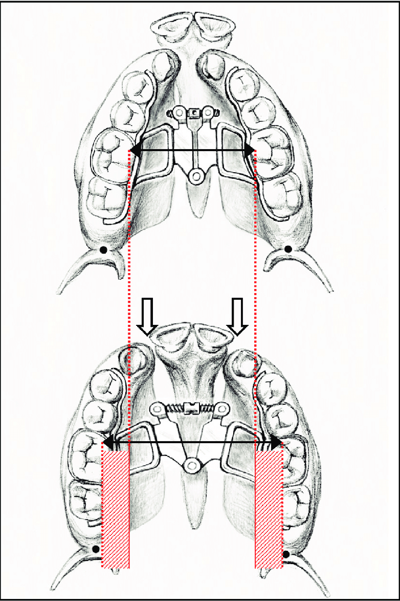 medium resolution of schematic kissing canine phenomenon before and after sarpe black arrows mark