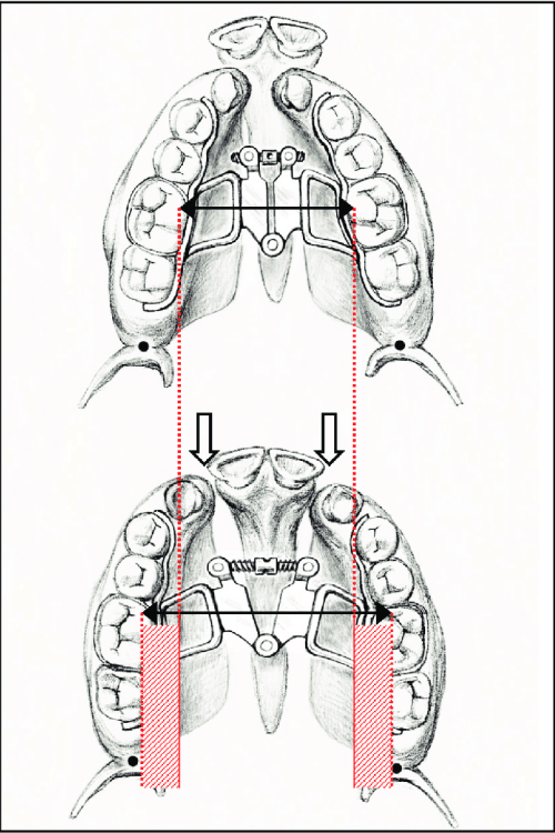 small resolution of schematic kissing canine phenomenon before and after sarpe black arrows mark