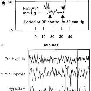 (PDF) Hypoxia, hyperoxia, ischemia, and brain necrosis