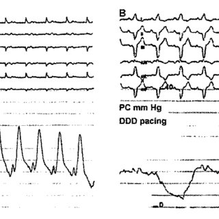 -Surface ECG and intracardiac recording showing marked