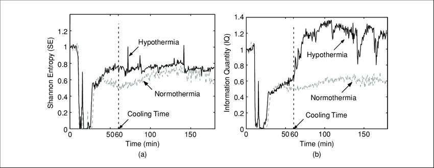 Quantitative assessment of EEG before, during, after