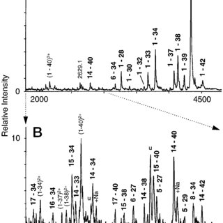 Amino acid sequence alignment of human and murine A. The