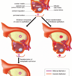 diagram of ovarian and tubal anatomy depicting the coelomic and m llerian models of ovarian cancer development [ 763 x 1213 Pixel ]