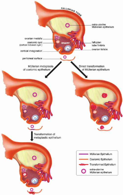 small resolution of diagram of ovarian and tubal anatomy depicting the coelomic and m llerian models of ovarian cancer development