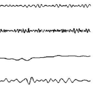 EEG signal (epoch of 3s) after decomposition of frequency