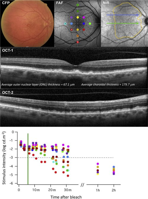 small resolution of color fundus photograph fundus autofluorescence faf and near download scientific diagram