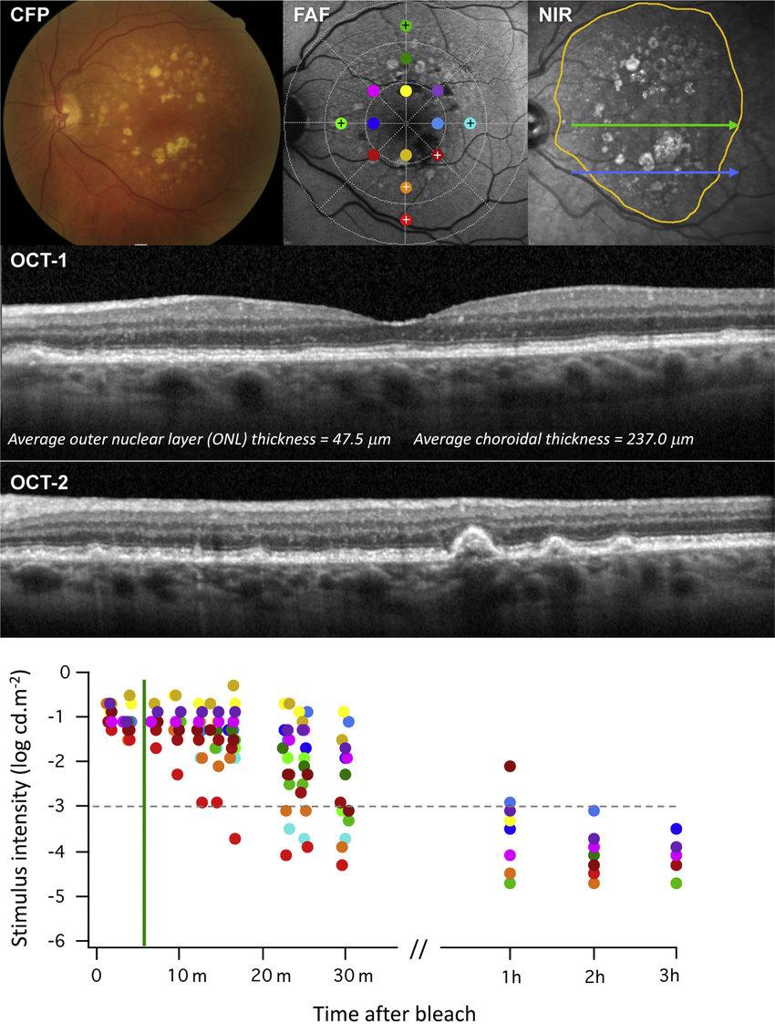medium resolution of color fundus photograph fundus autofluorescence faf and near download scientific diagram