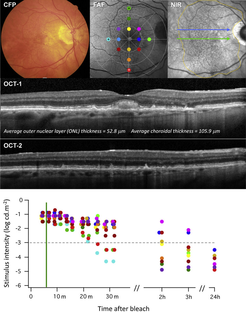 hight resolution of color fundus photograph fundus autofluorescence faf and near download scientific diagram