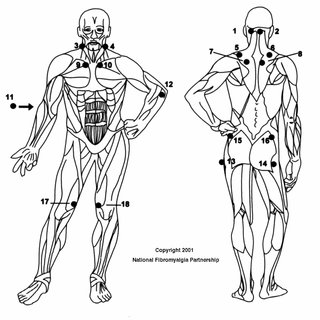 (PDF) The Relationship Between Fibromyalgia and Emotional