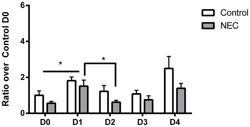 RT-PCR results for NOX1. Both control and NEC samples