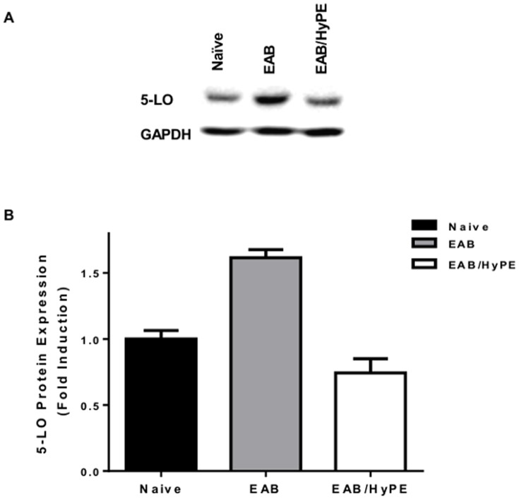 5-LO protein in mice lung homogenates was determined by