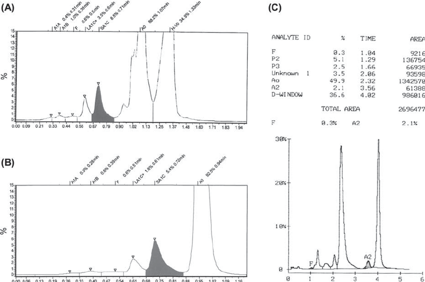 Chromatograms of the patient ' s sample analyzed with