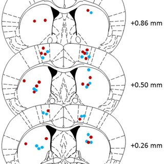 Schematic coronal sections of the mouse brain showing