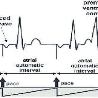 (PDF) Heart Electrophysiology/ A Comparison between Single